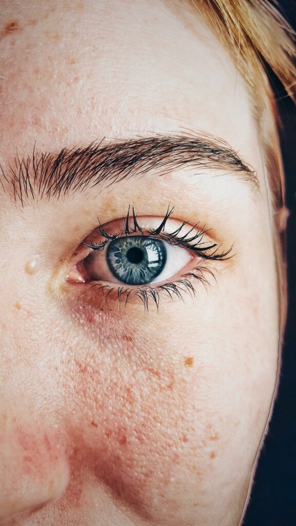 5 Signs Your Hormones Are the Culprit Behind Your Acne Outbreaks 1